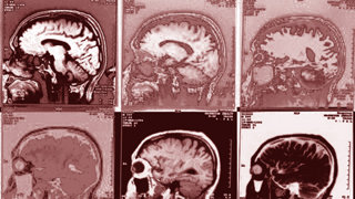 No Brain Scans for Mental Illness